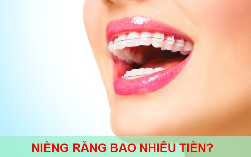 Niềng răng móm bao nhiêu tiền