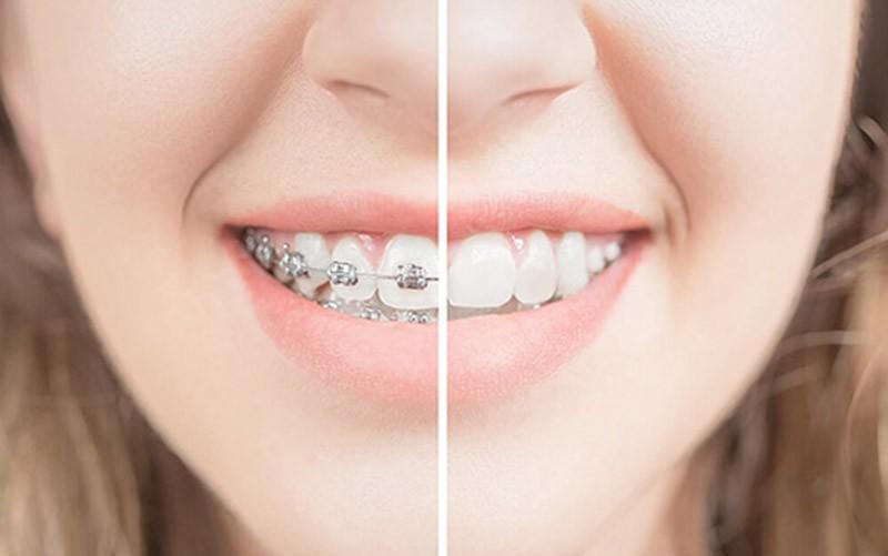 Tại sao nên niềng răng